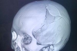 Cứu sống bệnh nhân bị nứt sọ phức tạp