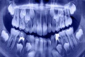 Nha sĩ hoảng hồn lấy ra hơn 500 chiếc răng từ miệng bé trai 7 tuổi