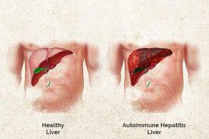 Nguyên nhân, triệu chứng, chẩn đoán bệnh viêm gan tự miễn
