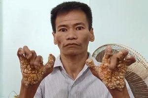'Người cây' đầu tiên ở Việt Nam được phát hiện sau 40 năm mang bệnh