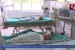 3 trẻ bỏng nặng đã thoát tình trạng sốc
