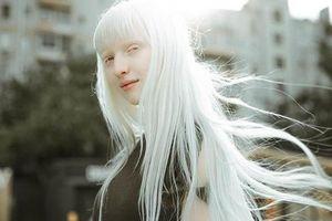Vẻ ngoài mê đắm của 'mẫu nữ bạch tạng xinh đẹp nhất thế giới'