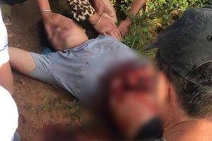 Kinh hoàng: Người đàn ông tự dùng dao rạch bụng vì nghĩ có bom bên trong