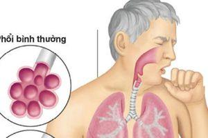 Nấm phổi - căn bệnh nguy hiểm ít người biết