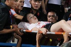 Nữ CĐV bị thương vì pháo sáng trên sân Hàng Đẫy
