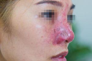 Cô gái suýt mất mũi vì tiêm filler giá rẻ ở spa