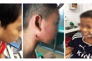 3 cháu bé ở Nghệ An nhiễm 'vi khuẩn ăn thịt người' hiện ra sao?