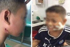 3 bệnh nhi mắc bệnh Whitmore ở Nghệ An: Sức khỏe chuyển biến tốt, 1 người đã được xuất viện