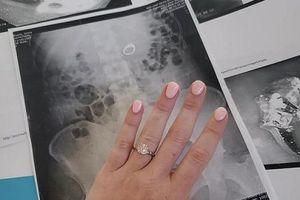 Mơ bị cướp tấn công, cô dâu lo sợ nuốt mất nhẫn đính hôn kim cương