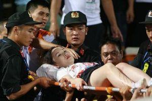 Đối tượng bắn pháo làm nữ cổ động viên bị thương thấy ân hận