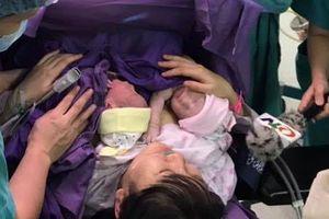 Cặp song sinh ở Quảng Ninh chào đời trong bọc ối