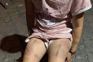 Xác minh thông tin cháu gái 6 tuổi ở Quảng Nam bị bà đánh thâm tím mình mẩy