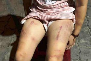 Xôn xao hình ảnh bé gái 6 tuổi bị bà cố nội đánh bầm tím khắp người