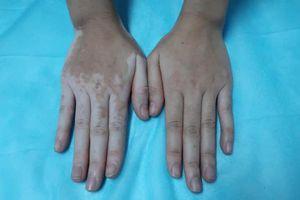 Kỳ lạ cô gái bỗng nhiên đổi màu tay chân vì chữa ra mồ hôi bằng lá trầu không