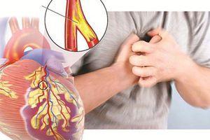 Đau thắt ngực – dấu hiệu cảnh báo căn bệnh cực kỳ nguy hiểm
