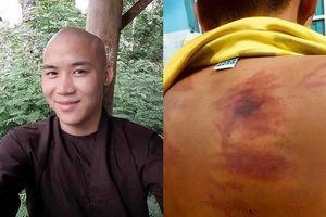Sự thật phơi bày về thầy chùa bạo hành bé 11 tuổi ở Bình Thuận