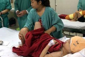 Phẫu thuật thành công cho cô bé mang khuôn mặt khác người