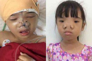 Tìm lại khuôn mặt cho bệnh nhân 7 tuổi mắc căn bệnh hiếm gặp trên thế giới - hốc mắt xa nhau và không có xương cánh mũi