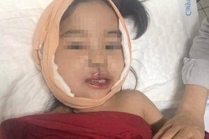 Bé gái 4 tuổi bị khối u quái ở má khiến ăn uống cũng khó khăn