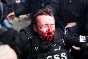 Phong trào 'Áo vàng' tròn 1 năm, Paris lại chìm trong bạo lực