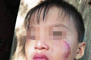 Bé 6 tuổi Bình Phước bị mẹ ruột đánh tím mặt, bầm người: Nguyên nhân càng...phẫn nộ