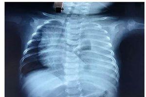 Bé 3 tháng bị rò nửa lít dịch đục như sữa vào phổi mỗi ngày