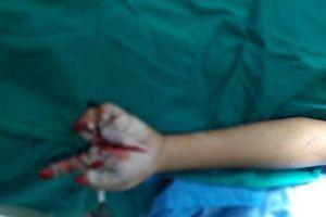 Bé trai 11 tuổi nhập viện vì nghịch pháo nổ