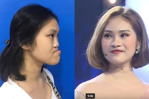 9X Phú Thọ 'như được hồi sinh' sau 3 ca đại phẫu gương mặt