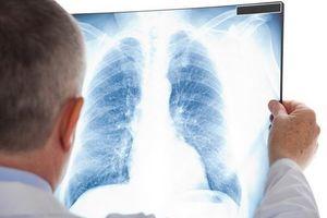 Tầm soát ung thư phổi - giảm thiểu nguy cơ tử vong