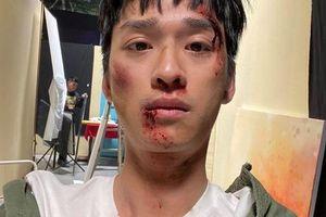 Trần Nghĩa 'thầy giáo Ngạn' bị đánh tơi tả trong 'Nhà trọ Balanha'