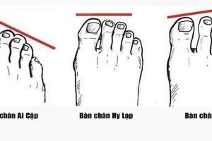 Kiểu bàn chân tiết lộ tính cách tiềm ẩn của bạn