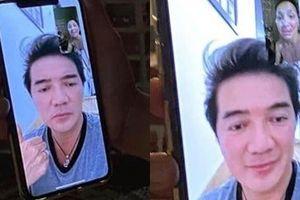 Tin tức giải trí sao Việt hôm nay (23/5): Hồng Ngọc lộ gương mặt biến dạng vì bỏng nặng