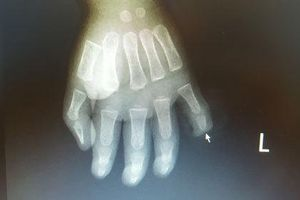 Cha mẹ bất cẩn, trẻ 17 tháng tuổi nghịch dao đứt dời đốt ngón tay