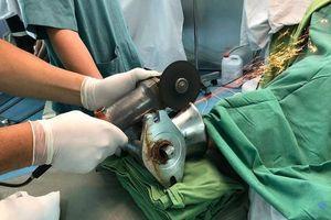 Bác sĩ dùng máy cắt giải thoát bàn tay người phụ nữ khỏi máy xay