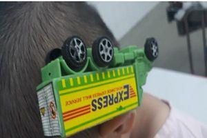 Cấp cứu bé trai bị que sắt của ô tô đồ chơi cắm vào đầu