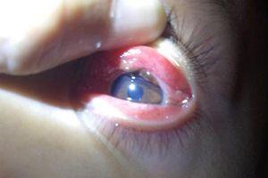 Gắp con vắt trong mắt bé trai 8 tuổi