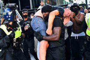 Người biểu tình da trắng bị thương trên vai người da màu ở London là một cựu cảnh sát