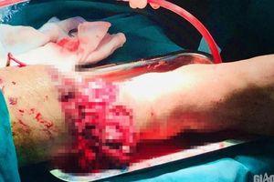 Nghẹt thở ca phẫu thuật cứu nạn nhân lìa cẳng chân sau TNGT với xe ba gác