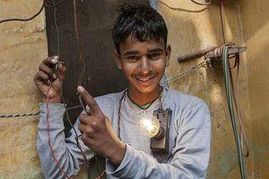 Dị nhân Ấn Độ chịu được dòng điện 11.000 Vôn