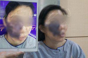 'Hóa giải' khối u máu khủng 'ăn' gần nửa khuôn mặt nữ công nhân nghèo