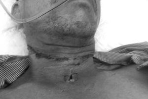Người đàn ông bị dây diều siết đứt cổ