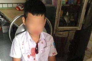 Người chứng kiến bé trai 7 tuổi bị bố của bạn đánh chấn thương: Khổ thân thằng bé con, lúc đấy nó vừa khóc vừa van xin'
