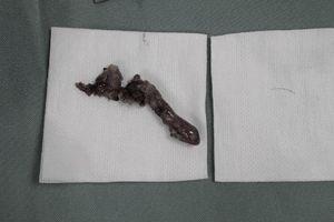 Bé trai 5 tuổi bị nhiễm trùng ruột thừa vì hóc xương cá