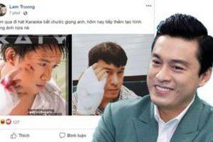Băng bó kín tay vì trật khớp, Lam Trường tranh thủ tái hiện lại ảnh bìa CD đình đám gần chục năm trước khiến fan 'cạn lời'