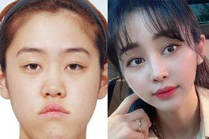 Cô gái Hàn Quốc đổi đời thế nào sau 8 năm phẫu thuật thẩm mỹ?