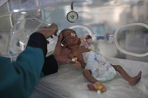 Vì Covid-19, 10.000 trẻ em đang chết mỗi tháng dù không nhiễm virus