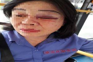 Nhắc nhở khách mở nhạc nhỏ, nữ tiếp viên xe buýt bị đánh bầm mắt