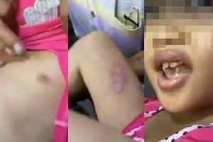 Thông tin mới nhất vụ cha dượng đánh đập, châm điếu thuốc vào người bé gái ở TP.HCM