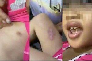 Sắp xét xử cha dượng đánh đập, châm điếu thuốc vào người bé gái ở TP.HCM
