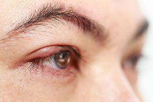 Cách chữa lẹo mắt hiệu quả